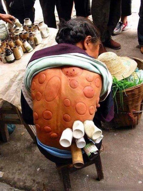Традиционная китайская медицина.